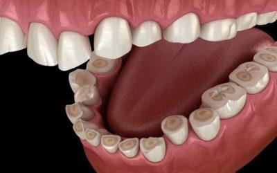 Dlaczego zgrzytam zębami?