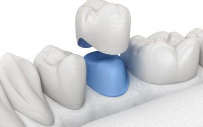 Nowoczesne metody odbudowy protetycznej zębów